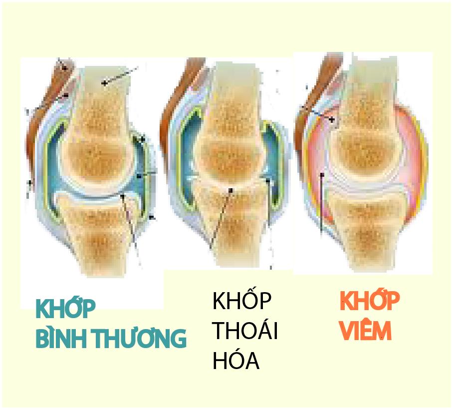 cac-benh-xuong-khop-thuong-gap-hien-nay