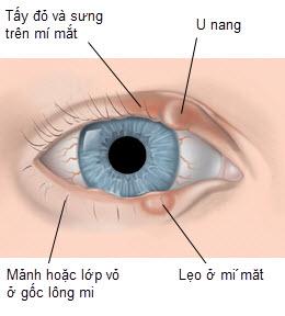 nhung-benh-nguy-hiem-thuong-gap-ve-mat 2