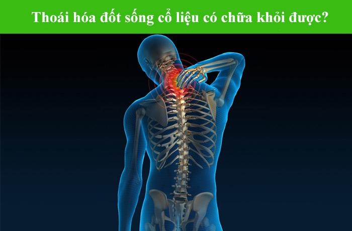 chua-benh-thoai-hoa-cot-song-bang-thao-duoc