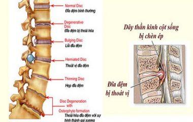 Bệnh thoát vị đĩa đệm là căn bệnh gây ra những cơn đau nhức âm ỉ hoặc dữ dội kéo dài. Phụ thuộc vào vị trí bị thoát vị mà người ta thường chia ra từng trường hợp bệnh lý khác nhau. Cách trị thoát vị đĩa đệm bằng cách nào hiệu quả nhất. Cùng chuyên mục cách chữa bệnh...