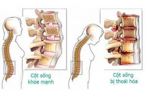 cách điều trị thoái hóa cột sống thắt lưng